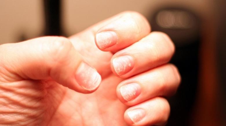 Майонеза и краставица заздравяват ноктите за дни