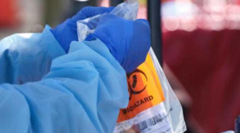 Само 16 нови случая на коронавирус у нас, починали няма