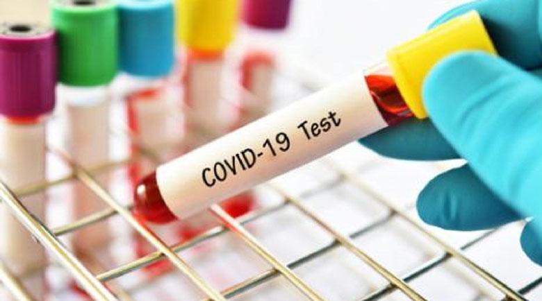 516 са новите заразени с коронавирус, 115 са излекуваните за денонощие