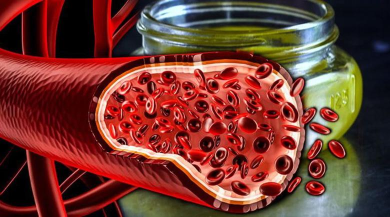 Почистване на кръвоносните съдове с народни средства